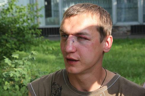 У Києві хлопця побили за українську мову [фото, відео] - фото