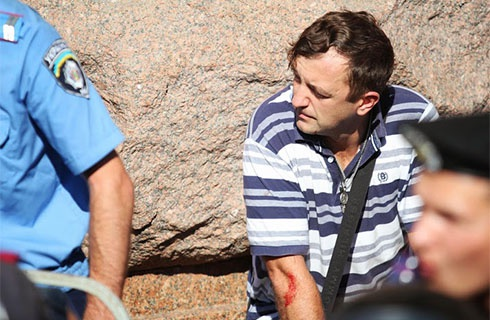 В Київраді «Беркут» побив депутата-свободівця Леонова - фото