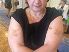 Охорона Азарова побила нардепа Ольгу Сікору – Батьківщина