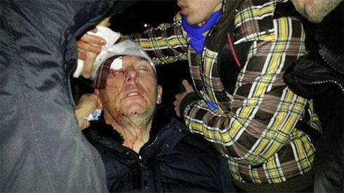 Юрію Луценку міліціонери розбили голову - фото