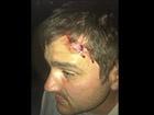 Напали на кандидата до Київради від «Свободи» Руслана Андрійка