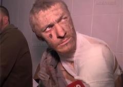 LifeNews допитав полоненого-українця - фото