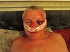 У Запоріжжі викрали й побили керівника осередку Правого сектору