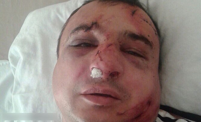 В Києві побили сепаратиста Клінчаєва - фото