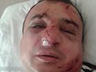 В Києві побили сепаратиста Клінчаєва