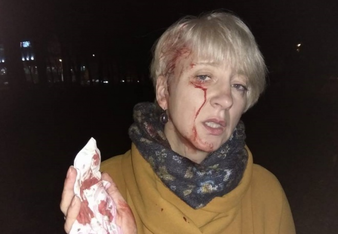 У Полтаві побили суддю, яка заявляла, що мер хотів її підкупити - фото