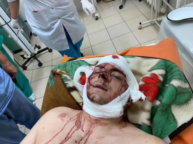 В Конотопі жорстоко побили колишнього мера, «свободівця» Артема Семеніхіна - фото