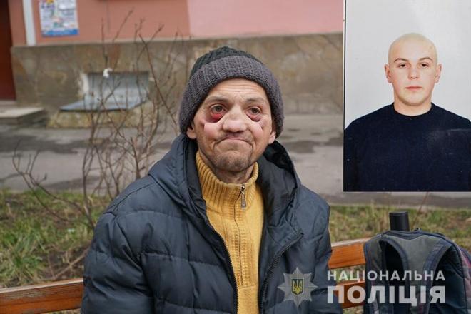 Амфетамін за два роки «виїв» людину - фото