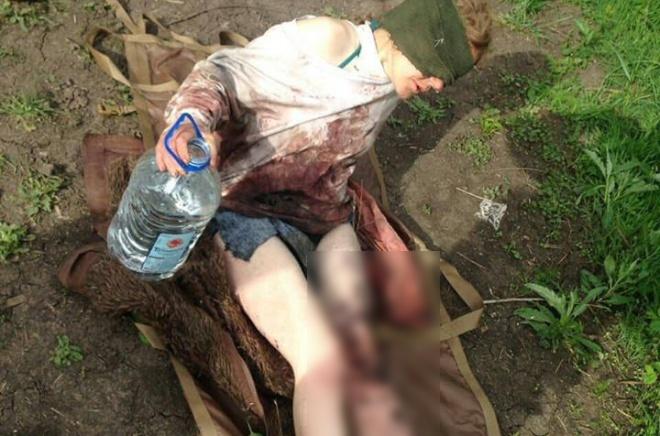 На Донбасі на російській міні підірвалася цивільна особа - фото