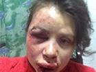 Чорновол узнала одного из нападавших