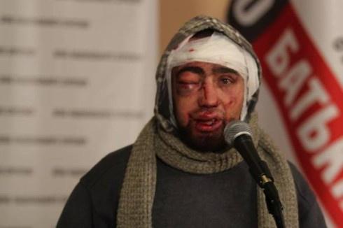 Зверства милиции на Грушевского: избили, раздели и на морозе облили водой - фото