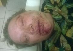 В России избили активистку т.н. «ЛНР» - фото