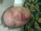 В России избили активистку т.н. «ЛНР»
