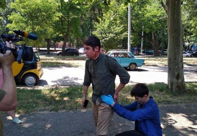 В Одессе с ножом напали на общественного активиста - фото