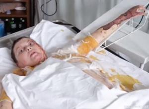 В больнице умерла активистка Екатерина Гандзюк - фото